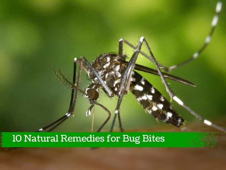 Natural Remedies For Bug Bites
